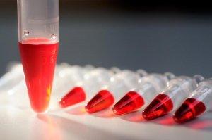 Общий и биохимический анализ крови не рекомендуется сдавать во время месячных