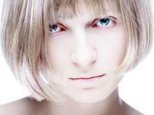 Острая нехватка железа может вызвать железодефицитную анемию
