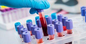 Лейкоциты – белые кровяные клетки, которые отвечают за иммунитет