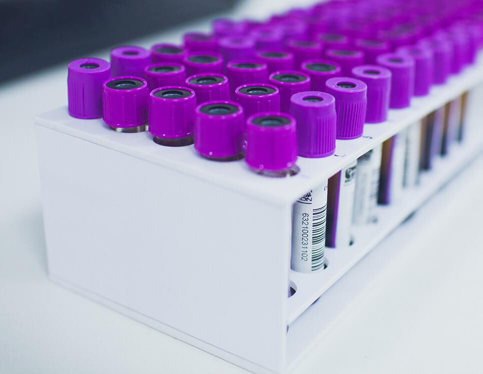 Биохимия крови — АЛТ: диагностика и расшифровка