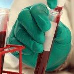 Повышены эритроциты в крови, что это значит: причины и формы эритроцитоза