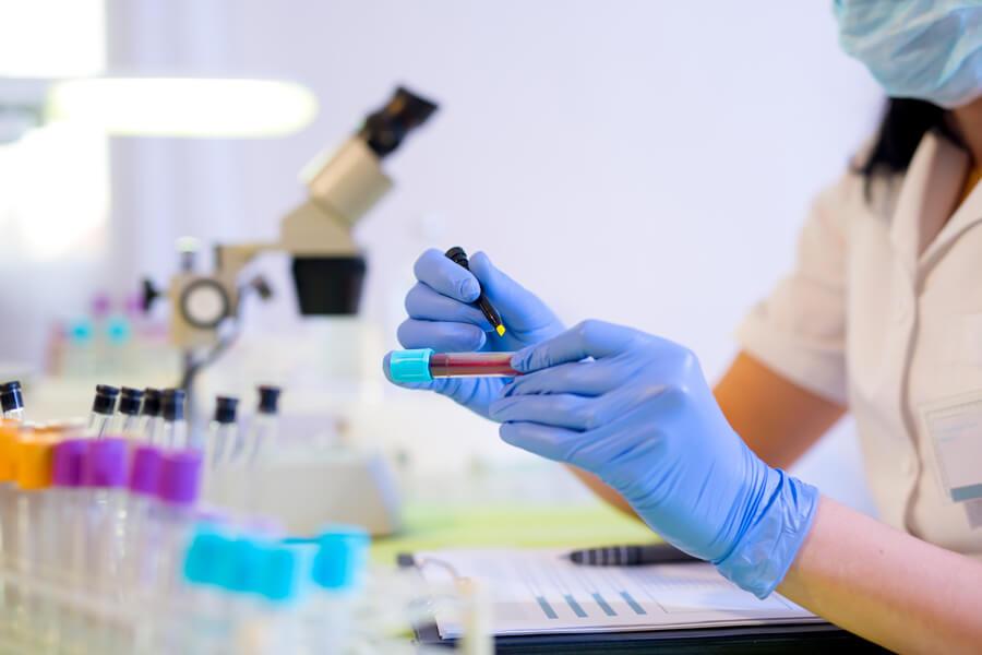 Нормы лейкоцитов в крови у детей, взрослых и беременных