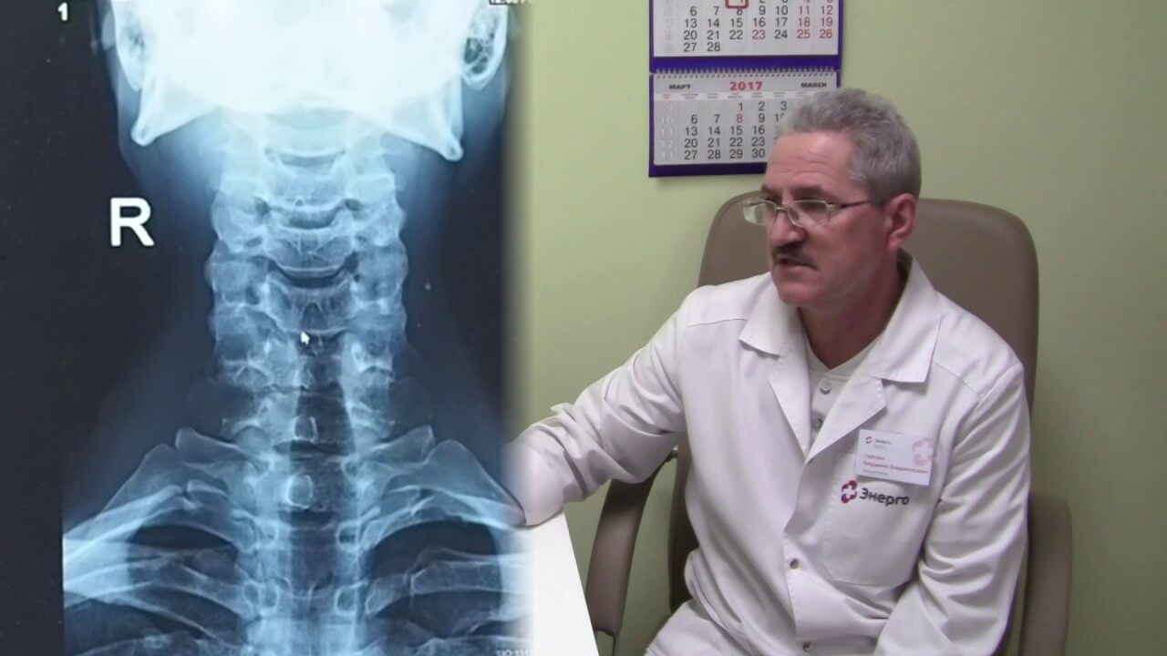 Рентген шейного отдела позвоночника: процедура и возможные результаты