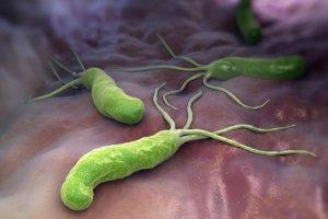 Бактерия может вызвать гастрит, язву желудка и даже рак!