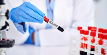 Анализ позволяет выявить разные заболевания и патологические процессы в организме человека