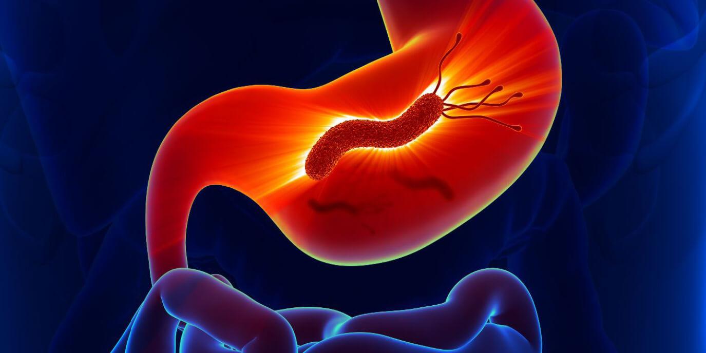 Хеликобактер пилори — что это такое за бактерия?