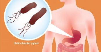 Хеликобактер пилори – это вредоносная бактерия