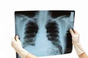 Расшифровкой снимка занимается врач-рентгенолог и терапевт
