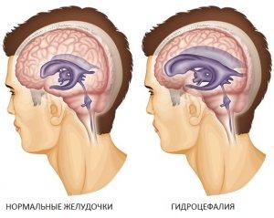 При гидроцефалии происходит увеличение объема желудочков головного мозга