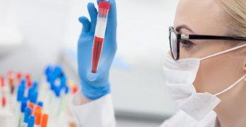 АЛТ – внутриклеточный фермент, который участвует в обмене аминокислот
