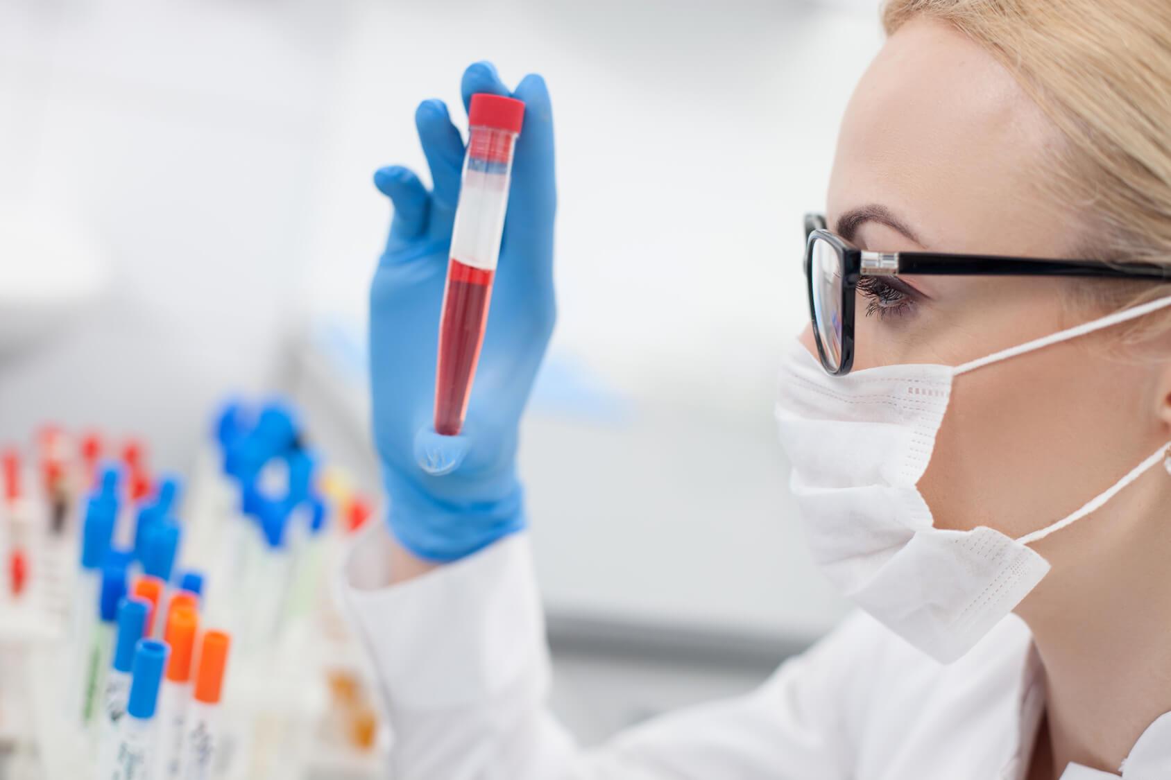 АЛТ — что это за показатель в анализе крови?