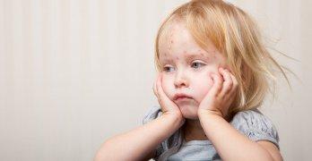 Краснуха – это вирусное инфекционное заболевание, чаще всего возникающее у детей до 7 лет
