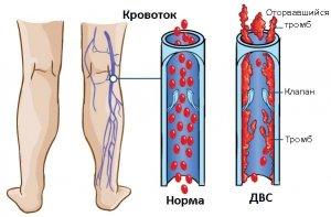 ДАС-синдром – очень опасное нарушение системы гемостаза