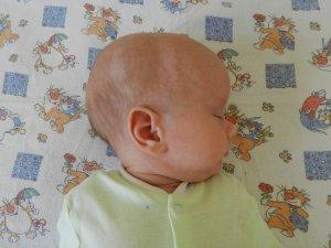 Врожденная гидроцефалия сопровождается увеличением размера головы на 50% от обычного объема
