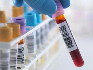 При лейкозе количество лейкоцитов в крови будет сильно повышено, а тромбоцитов эритроцитов – сильно снижено