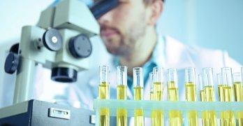 Лейкоциты в моче должны присутствовать в небольшом количестве