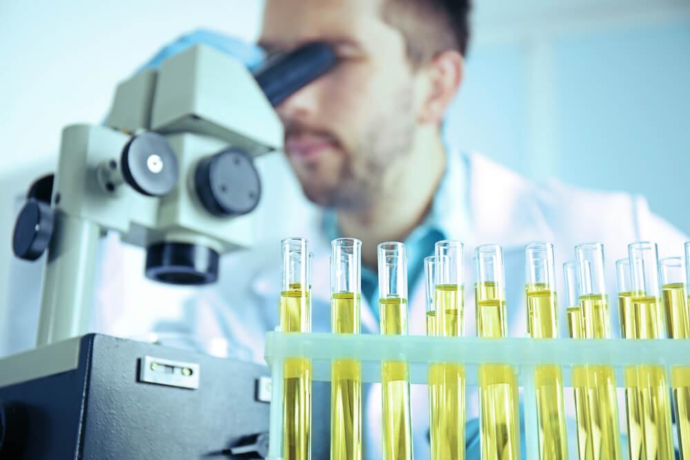 Лейкоциты в моче: основные причины лейкоцитурии