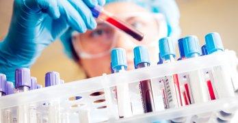 Тромбоциты – самые мелкие клетки крови, которые образуются в костном мозге