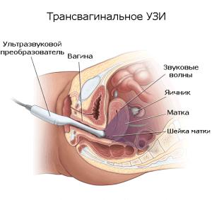 Трасвагинальное УЗИ запрещается проводить во 2 и 3 триместре беременности