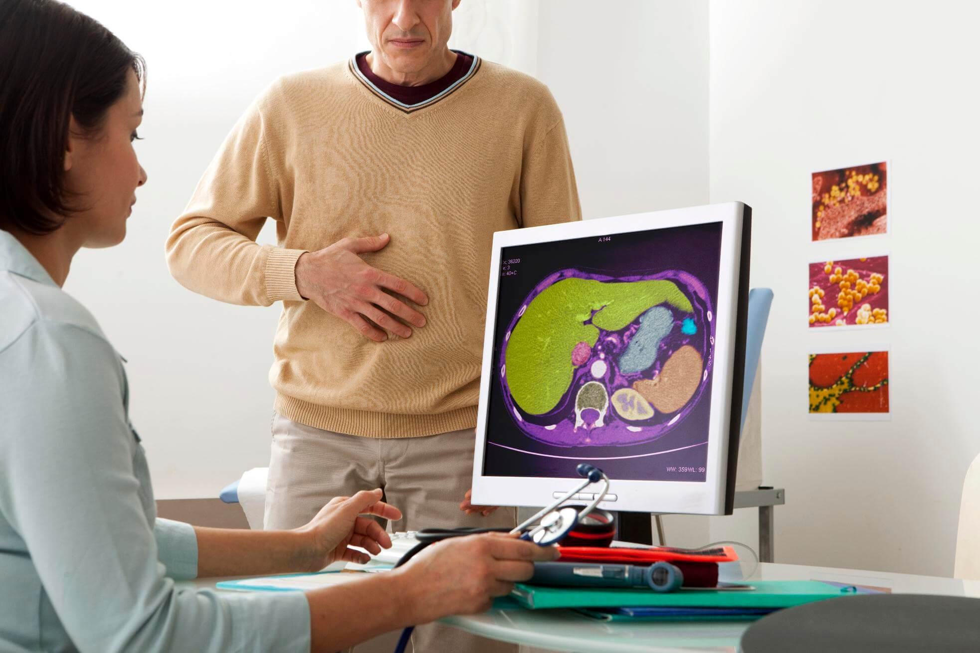 Гиперплазия печени: основные признаки и методика лечения патологии