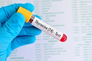 При анализе учитывается не только количество гормонов, но и показатели антител