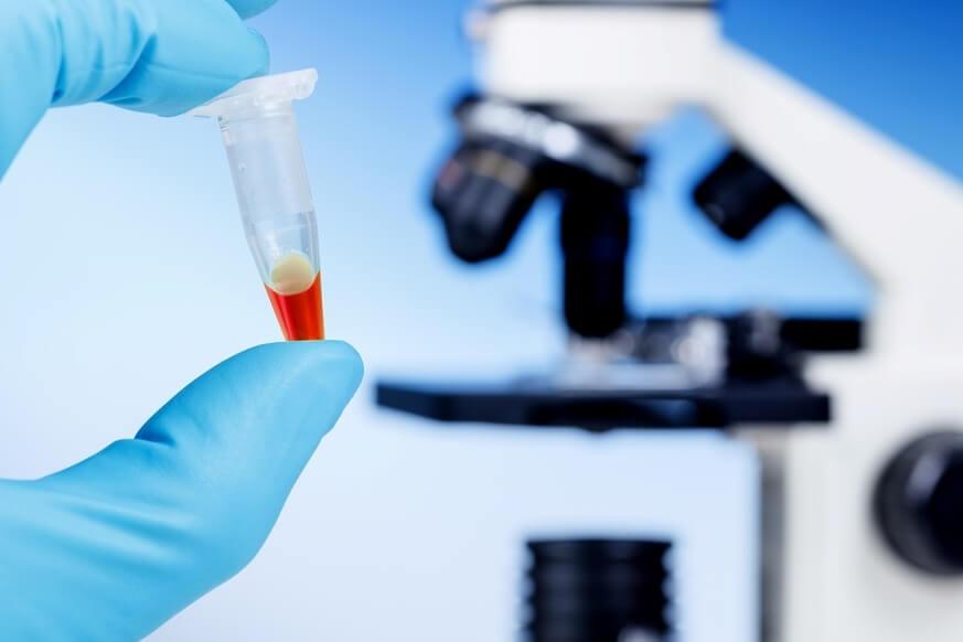 Анализы на TORCH-инфекции при беременности и их расшифровка