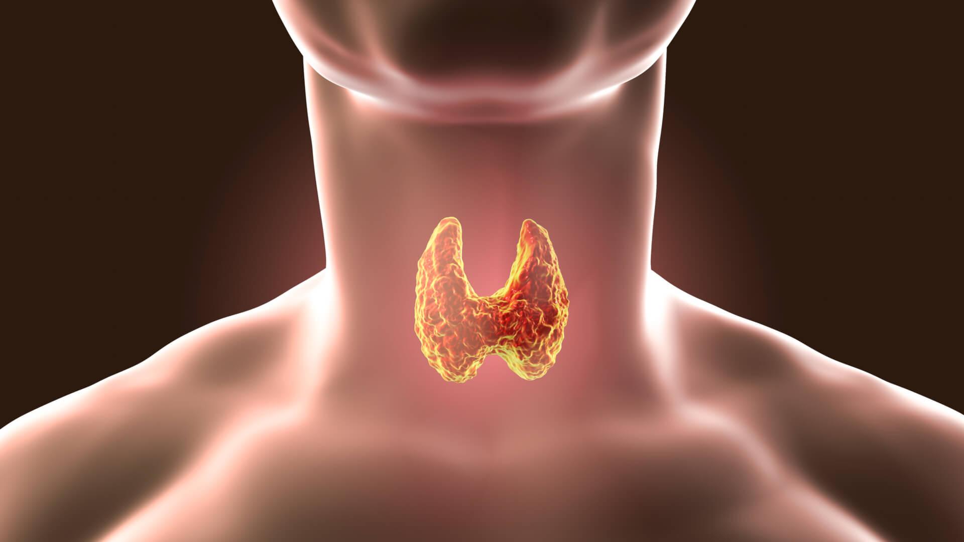 Как проявляются и чем опасны узлы на щитовидной железе?