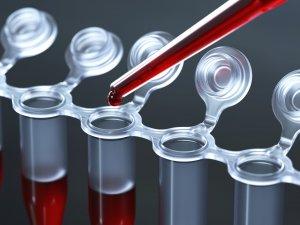 Низкий уровень показателя говорит о пониженной свертываемости крови