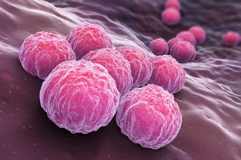 Что такое хламидия и чем она опасна?