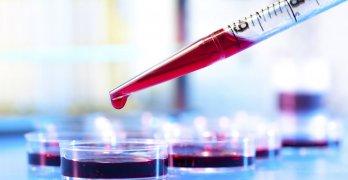 Тромбоциты – маленькие плоские безъядерные бесцветные форменные элементы крови