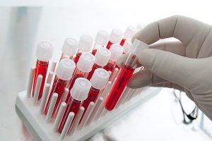Анализ крови на гормоны щитовидки поможет установить диагноз!
