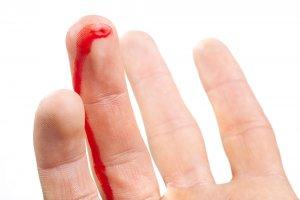 Тромбоцитопения сопровождается повышенной кровоточивостью и проблемами с остановкой кровотечения