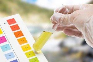 Количество солей в моче определяется по специальной сравнительной шкале