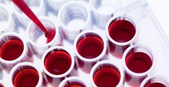 Мочевая кислота – это конечный продукт метаболизма пуринов