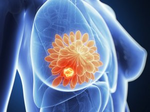 Ощущение уплотнения в груди при пальпации – основной признак патологии