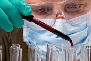 Диагностика тромбофилии включает в себя несколько анализов