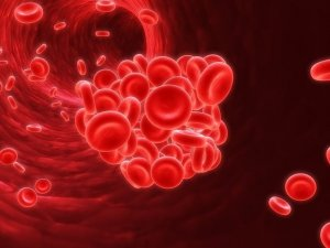 Тромбофилия - патологическое состояние, которое характеризуется нарушением системы свертываемости крови