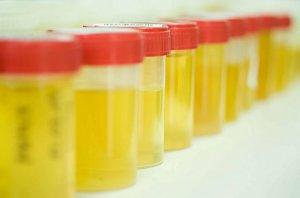 Почты все воспалительные процессы в организме отражаются на свойствах мочи
