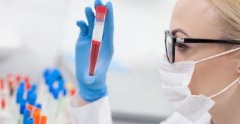 Железо отвечает за кислородное наполнение тканей в организме человека