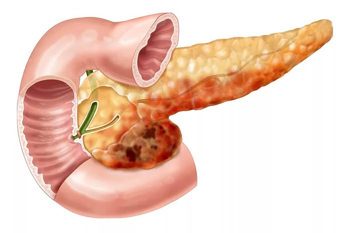 Какие гормоны вырабатывает поджелудочная железа и в чем их функция?