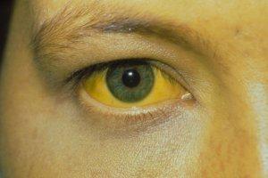 Желтушность кожных покровов и слизистых оболочек – признаки повышенного уровня билирубина