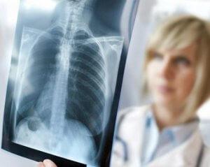Изменения на флюорограмме могут быть признаками патологии легких