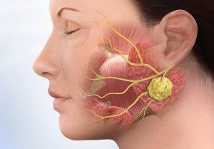 Воспаление железы может протекать в острой и хронической форме