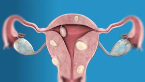 Интерстициальная миома матки – это опухолевидное узловое доброкачественное образование