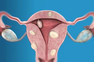 Миома матки интерстициальная форма: лечение, прогноз и осложнения
