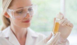 Суточный белок в моче: норма и патология