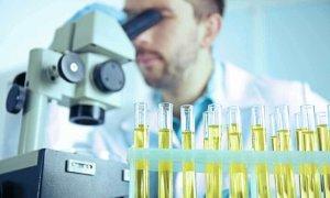 Повышенный уровень белка в моче может быть вызван как физиологическими, так и патологическими причинами
