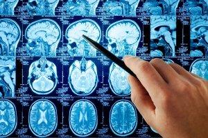 Киста в головном мозге у взрослого: виды, диагностика и способы удаления