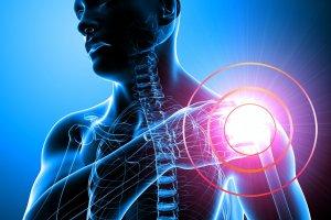 Чем опасен и как лечится асептический некроз головки плечевой кости?