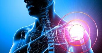 Асептический некроз головки плечевой кости может быть вызван разными причинами и факторами